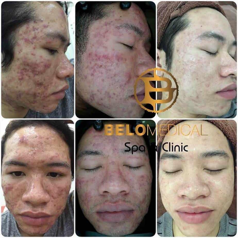 Top 5 Địa Chỉ Điều Trị Mụn Uy Tín Tại Quận 1 Tp. Hồ Chí Minh - - BeloMedical Spa - Clinic | Gà Spa | Khơ Thị Skincare & Clinic 21