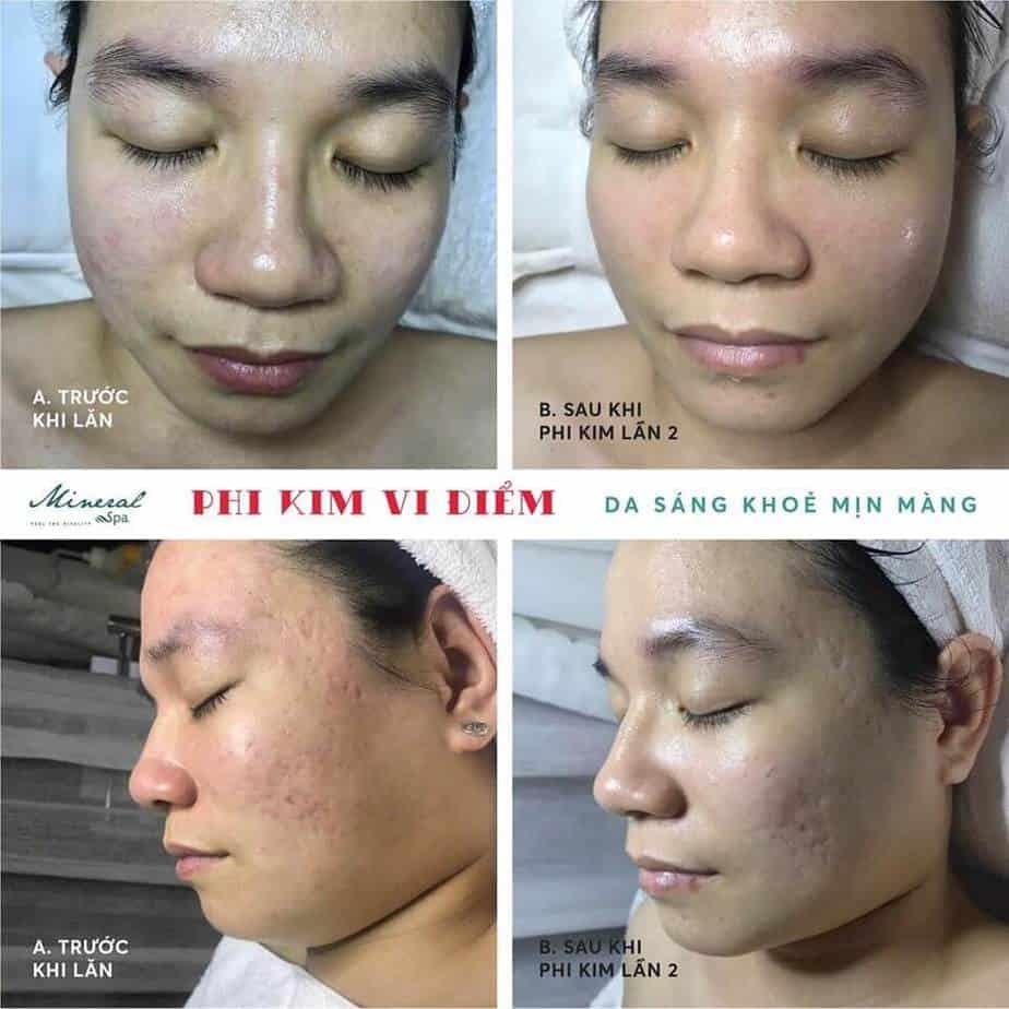 Top 5 Địa Chỉ Điều Trị Mụn Uy Tín Tại Quận 1 Tp. Hồ Chí Minh - - BeloMedical Spa - Clinic | Gà Spa | Khơ Thị Skincare & Clinic 17