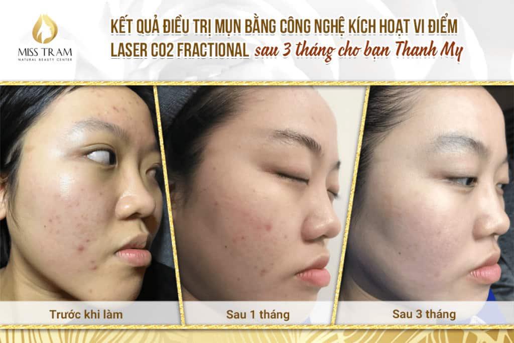 Top 5 Địa Chỉ Điều Trị Mụn Uy Tín Tại Quận 1 Tp. Hồ Chí Minh - - BeloMedical Spa - Clinic | Gà Spa | Khơ Thị Skincare & Clinic 15
