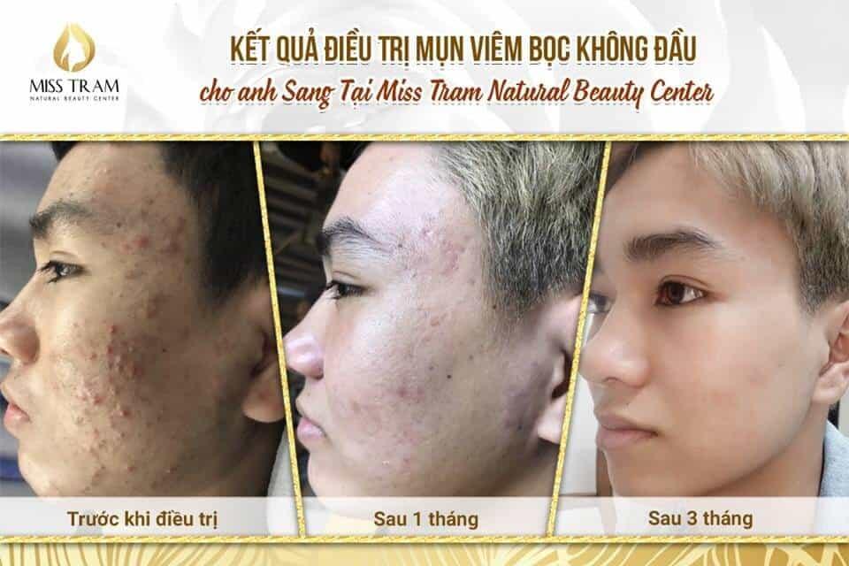 Top 5 Địa Chỉ Điều Trị Mụn Uy Tín Tại Quận 1 Tp. Hồ Chí Minh - - BeloMedical Spa - Clinic | Gà Spa | Khơ Thị Skincare & Clinic 13