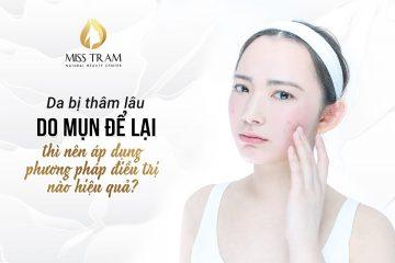Top 5 Địa Chỉ Điều Trị Mụn Uy Tín Tại Quận 1 Tp. Hồ Chí Minh 340