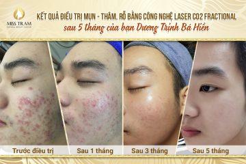 Top 5 Địa Chỉ Nặn Mụn Uy Tín Tại Quận Phú Nhuận Tp. Hồ Chí Minh 1