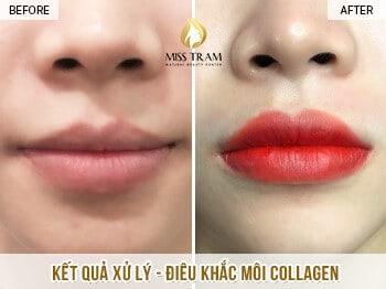Top 10 Địa Chỉ Phun Thêu Điêu Khắc Nổi Tiếng Quận Phú Nhuận TP. HCM -  - Jolie Beauty & Spa | Miss Tram Academy | Nail & Spa Quỳnh Nhi 51