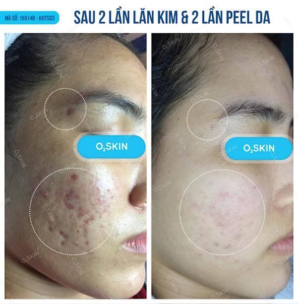 Top 5 Thẩm Mỹ Viện Điều Trị Sẹo Hiệu Quả Nhất Quận Bình Thạnh - thẩm mỹ viện điều trị sẹo hiệu quả nhất - Beryl Beauty & Spa | Phòng Khám Da Liễu O2 Skin | Thẩm Mỹ Viện Miss Tram 27
