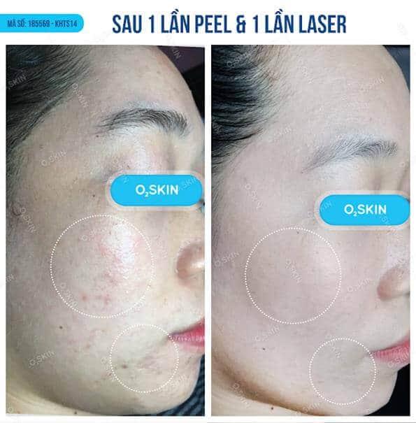 Phòng Khám Da Liễu O2 Skin thẩm mỹ viện điều trị sẹo hiệu quả nhất