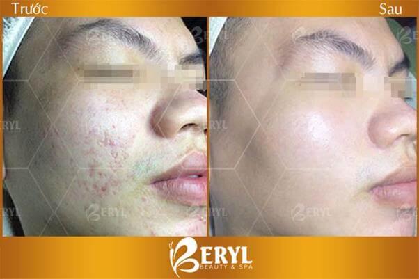 Beryl Beauty & Spa thẩm mỹ viện điều trị sẹo hiệu quả nhất
