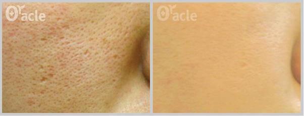 Viện Thẩm Mỹ Oracle Việt Nam thẩm mỹ viện điều trị sẹo hiệu quả nhất