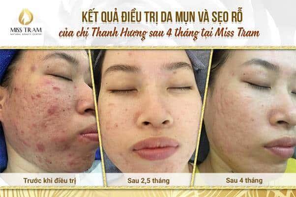 Top 5 Thẩm Mỹ Viện Điều Trị Sẹo Hiệu Quả Nhất Quận Bình Thạnh - thẩm mỹ viện điều trị sẹo hiệu quả nhất - Beryl Beauty & Spa | Phòng Khám Da Liễu O2 Skin | Thẩm Mỹ Viện Miss Tram 19