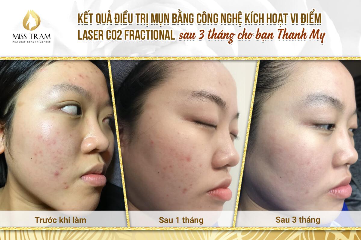 Top 8 Địa Chỉ Trị Thâm Mụn Bằng Laser Tốt Nhất HCM -  - Bệnh Viện Thẩm Mỹ KangNam | Bích Trâm Spa | Pensilia Beauty Clinic 14