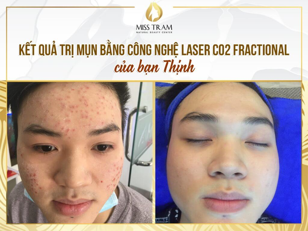 Top 8 Địa Chỉ Trị Thâm Mụn Bằng Laser Tốt Nhất HCM -  - Pensilia Beauty Clinic 1